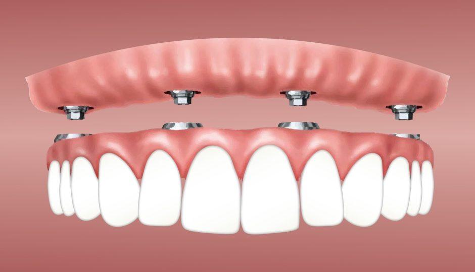 dental company IG Dental